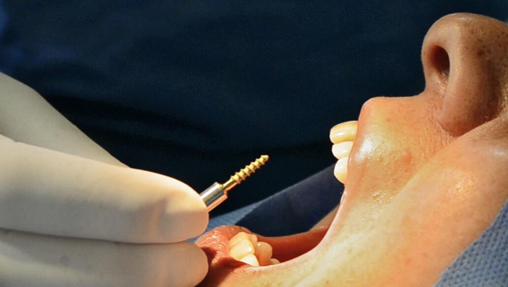 Pioneros en Implantología Estratégica de Carga Inmediata